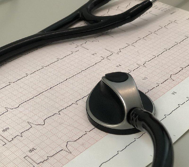 holter cardiaco san giuseppe
